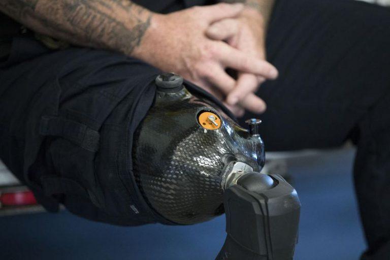 Mike prosthetic knee 768x512 1